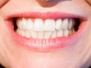 טיפול לשיקום הפה